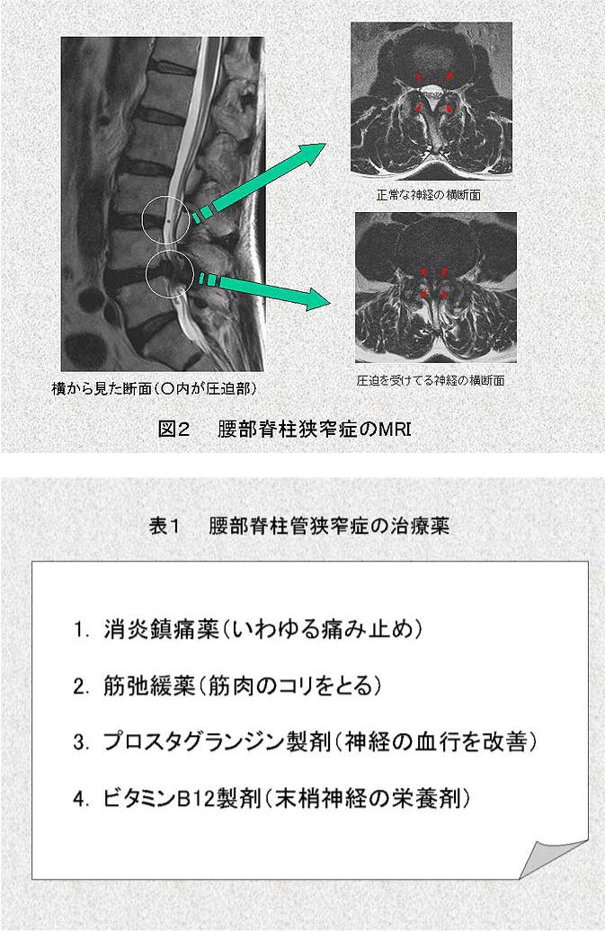 は 脊柱 と 管 症 狭窄